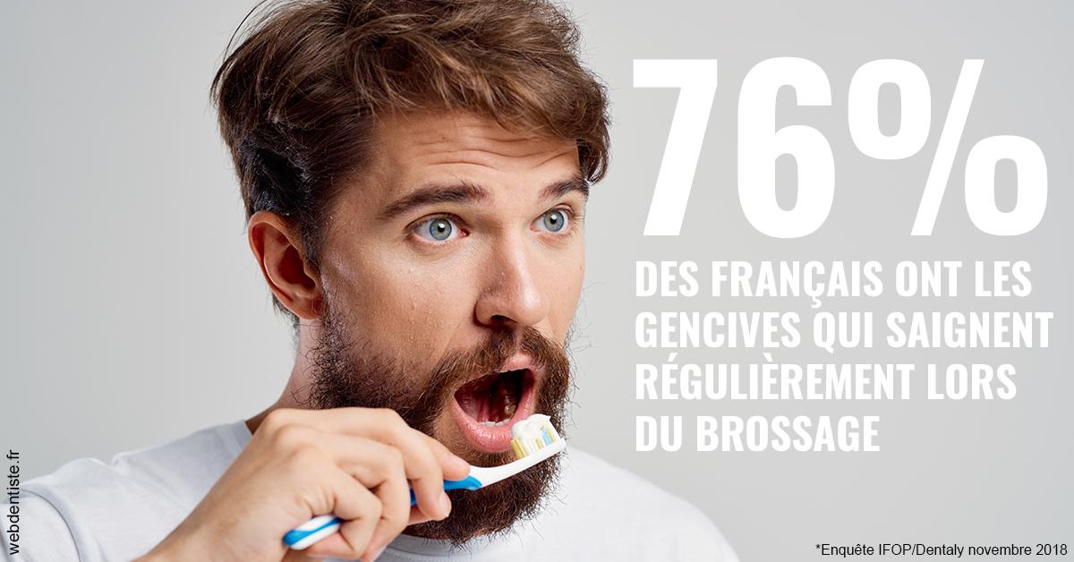 https://www.scm-adn-chirurgiens-dentistes.fr/76% des Français 2